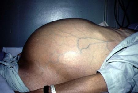 63 Лечение цирроза печени с асцитом