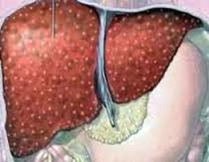 124 Хронический алкогольный гепатит